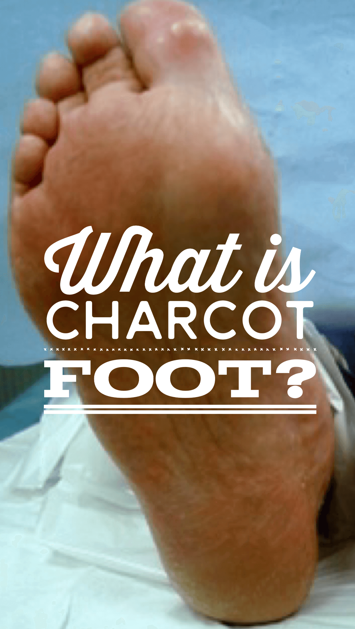 What is Charcot Arthropathy?  Charcot foot, as it is commonly referred to, is a chronic progressive disease of the bone and joints found in the feet and ankles of Charcot_Footour diabetic patients with peripheral neuropathy.