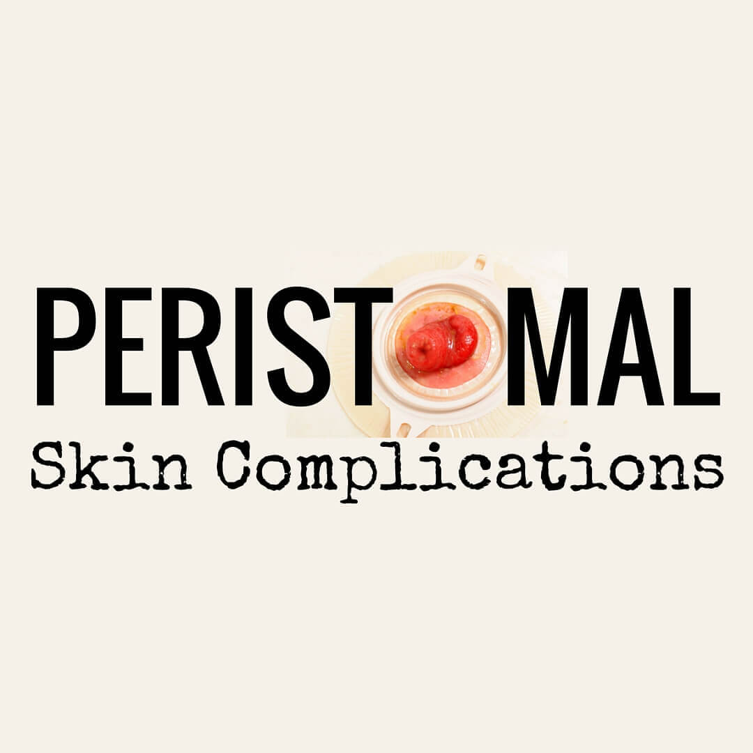 It's Complicated! Ostomy Patients and Peristomal Skin - This overview details the five main categories of peristomal skin complications that wound specialists commonly treat in ostomy patients.