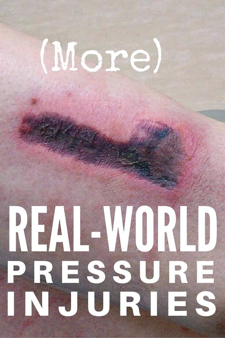 Pressure Injury (Ulcer) Staging: More Real-World Answers - More real-world wound care questions and answers relating to pressure injury staging, including slough, debridement and skin breakdown.