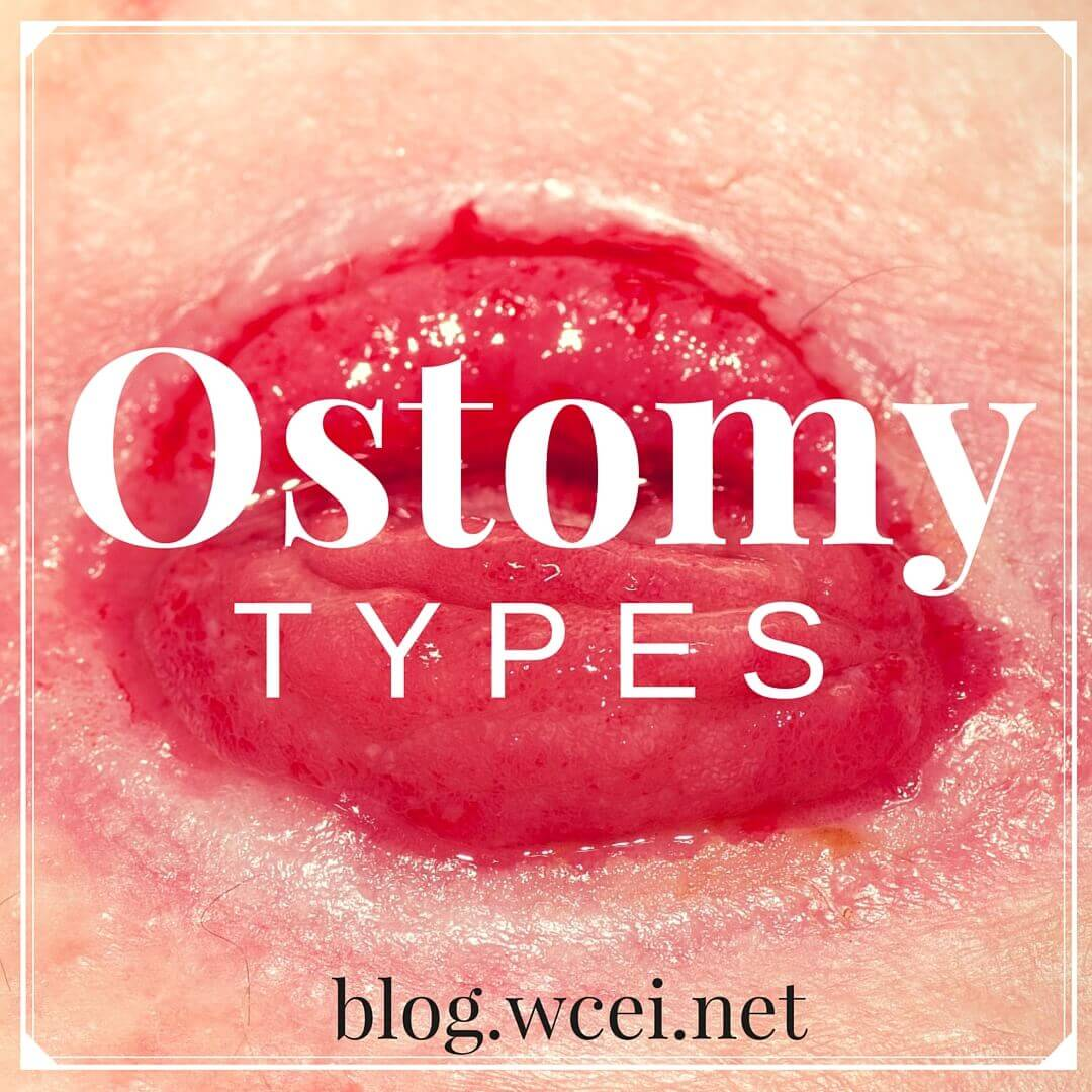 Let's Talk Ostomies: A comprehensive guide to the different types of ostomies, including colostomies, ileostomies, and urostomies.