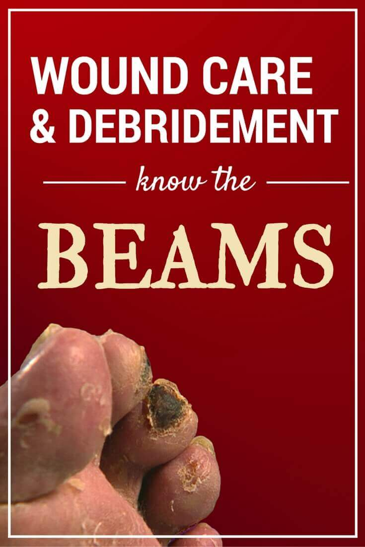 Wound Care and Debridement: Know the BEAMS - These five major debridement methods for wound clinicians are easy to remember (hint: BEAMS), and key to the wound healing process.