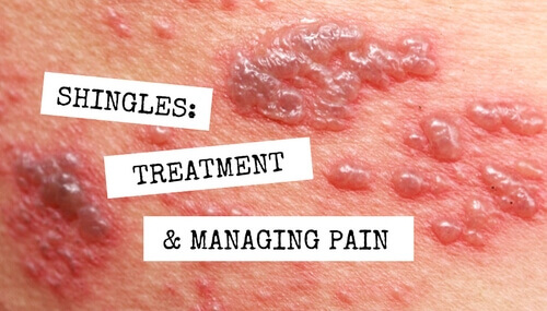 Shingles: Treatment and Managing Pain