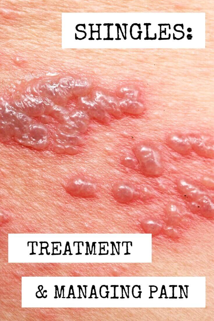 Shingles: Treatment and Managing Pain - Clinicians can help relieve patient pain and discomfort caused by shingles with these treatment options.