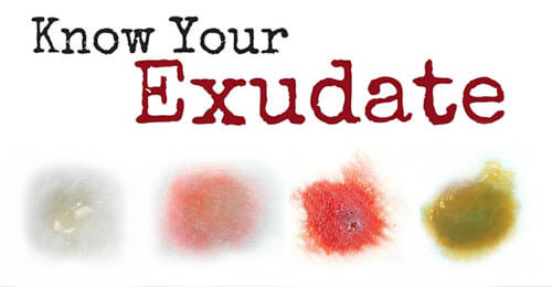Know Your Exudate