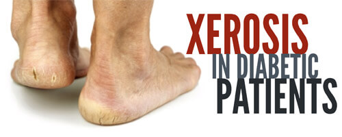 Xerosis in Diabetic Patients