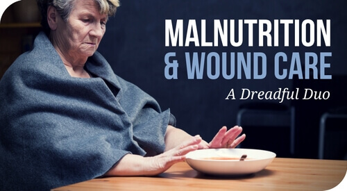 Malnutrition and Wound Care: A Dreadful Duo