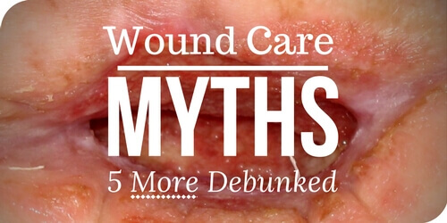 Wound Care Myths: 5 More Debunked