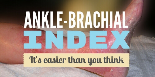 Ankle-Brachial Index? It's Easier Than You Think