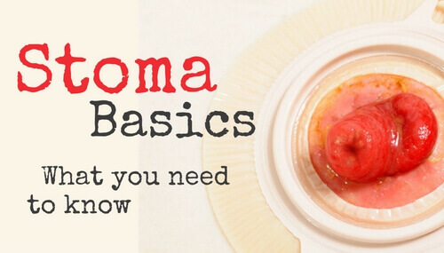 Stomas: What You Need to Know