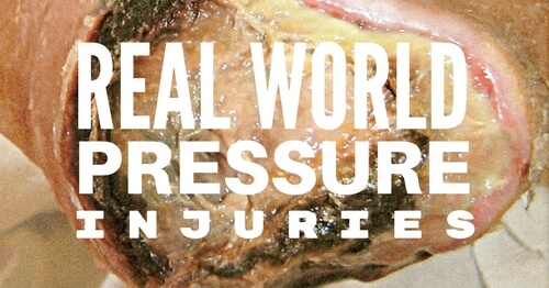 Real World Pressure Injury Staging